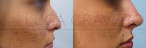 Rinofiller. Correzione del naso senza chirurgia [foto] 2.1
