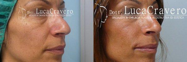 Rinofiller. Correzione del naso senza chirurgia [foto] 5.3