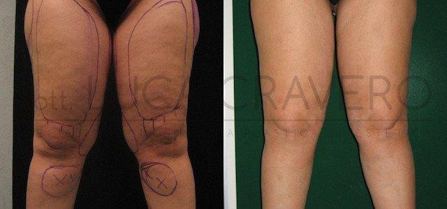 Liposuzione e liposcultura donna foto 1.1