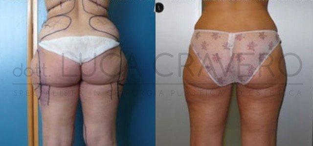 Liposuzione e liposcultura donna foto 2.3