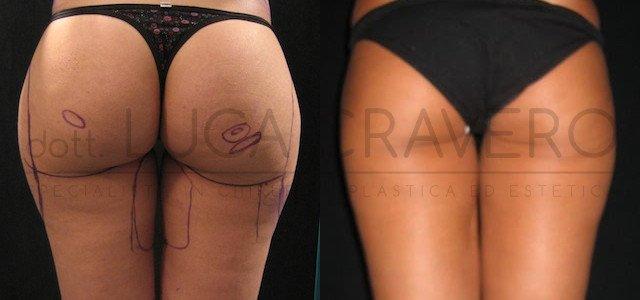 Liposuzione e liposcultura donna foto 3.1