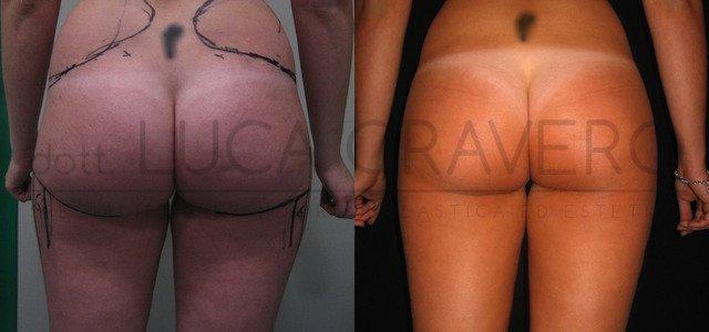 Liposuzione e liposcultura donna foto 8.1
