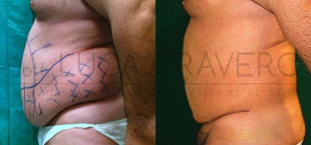 Liposuzione e liposcultura uomo foto 1.1