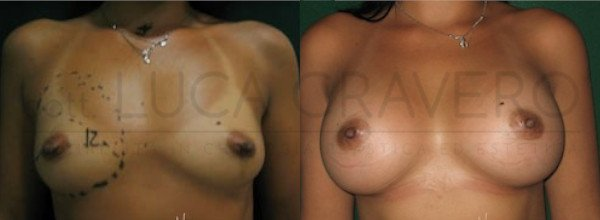 Mastoplastica Additiva. Protesi anatomiche 11.1