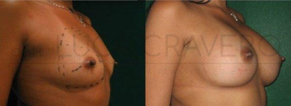 Mastoplastica Additiva. Protesi anatomiche 11.3