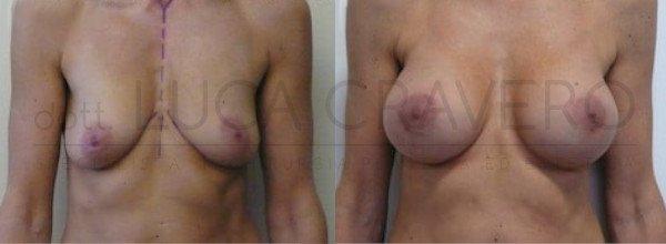 Mastoplastica Additiva. Protesi anatomiche 5.1