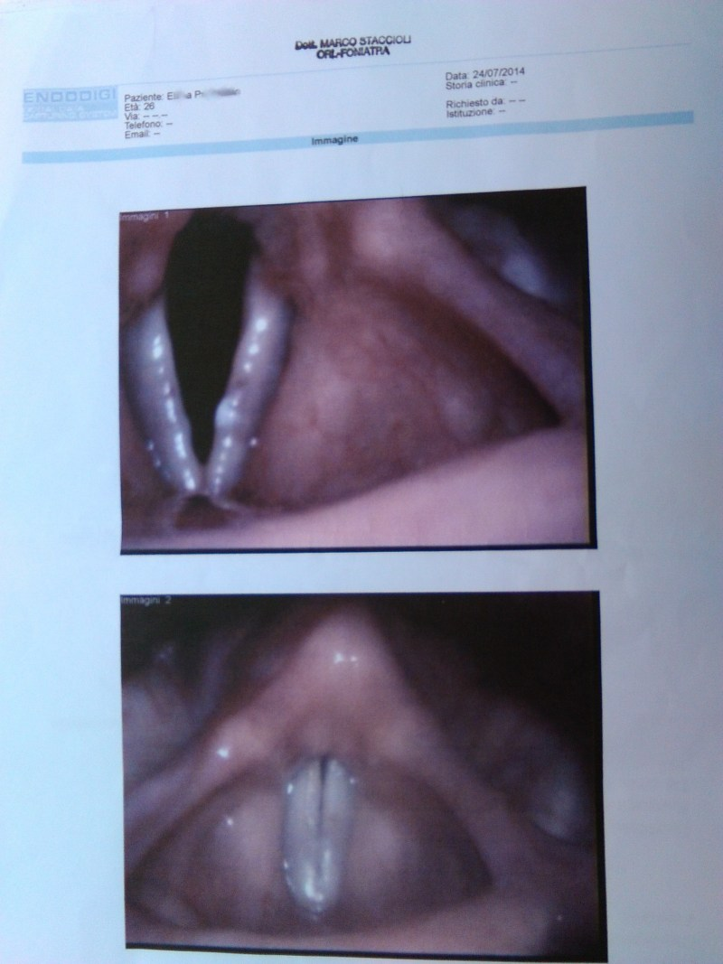 X. Y. vocal folds 24:07:2014