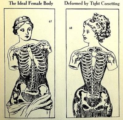Venus de Milo vs Victorian corseted woman. *sigh* Not this again.