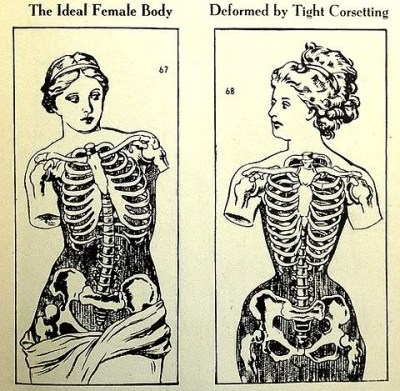 Venus de Milo vs Victorian corseted woman. *sigh* Not this again.