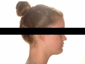 Side profile of girl after orthodontic treatment