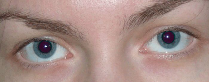 Αφαιρέστε τη μέθοδο των κόκκινων ματιών 1 (7)