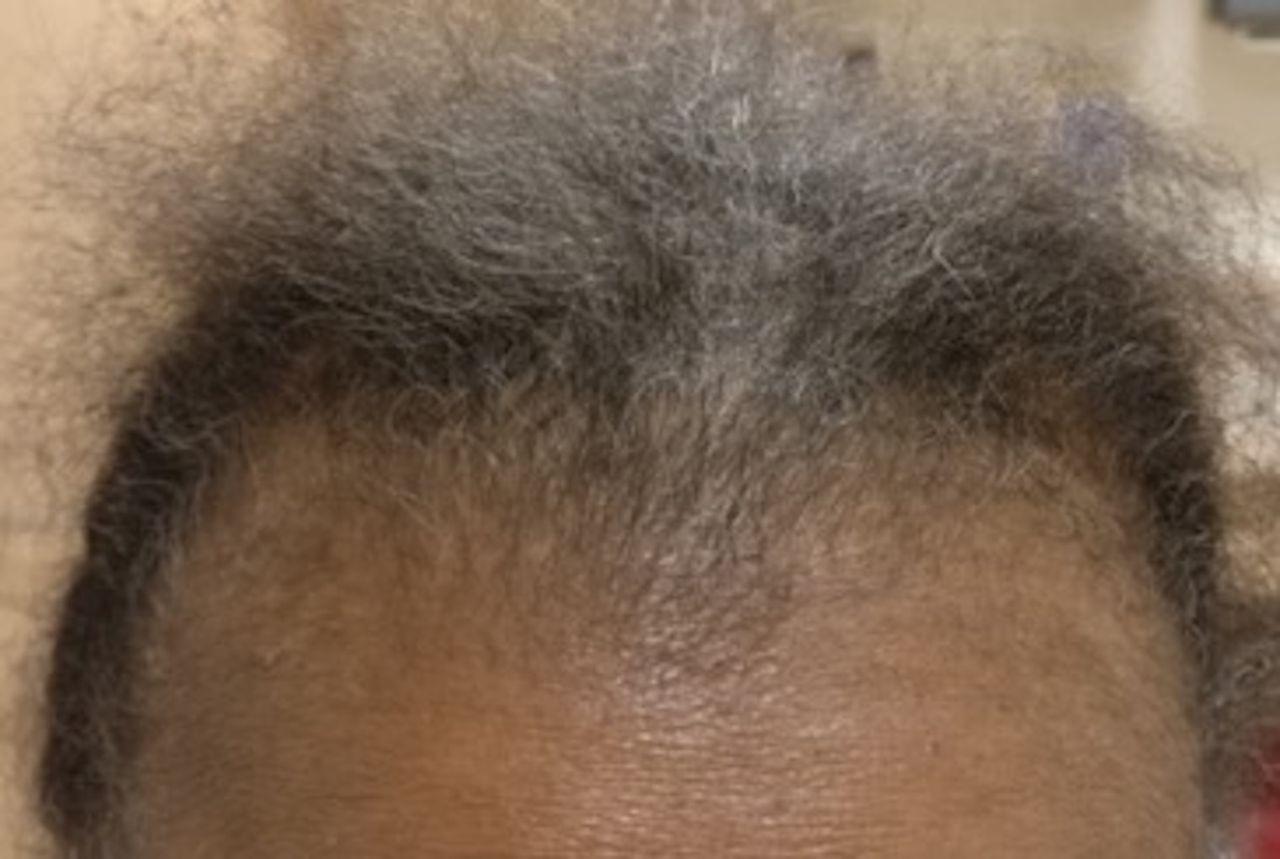 Alopecias In Lupus Erythematosus Science & Medicine