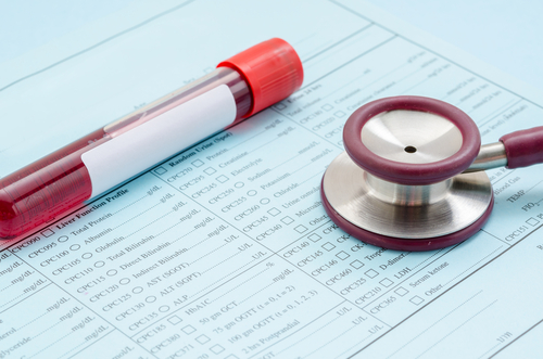 Index Based on Blood Levels of Specific Antibodies and Protein Complex May Predict Lupus Risk, Study Reports