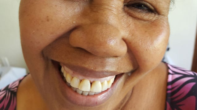 samoa dental