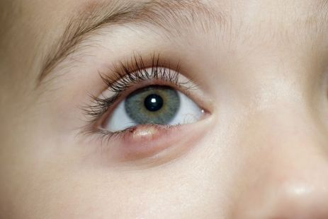 pink eye in kids, 3 Eye Problems and Pink Eye In Kids