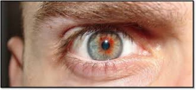 treat Swollen eyes, How To Treat Swollen Eyes Fast – Home Remedies