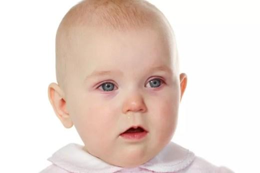 pink eye in kids, 3 Eye Problems and Pink Eye In Kids