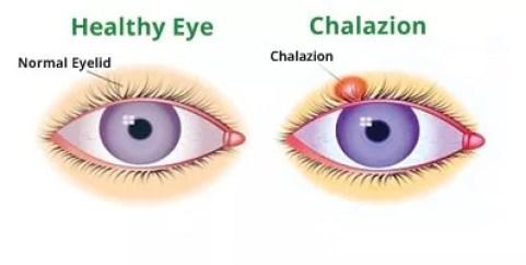 Chalazion Swollen Eyelid