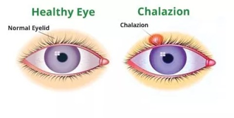 home remedies for swollen eyes, Home Remedies For Swollen Eyes and Symptoms Causes