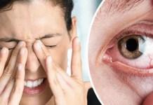 Dry Eyes Treatment