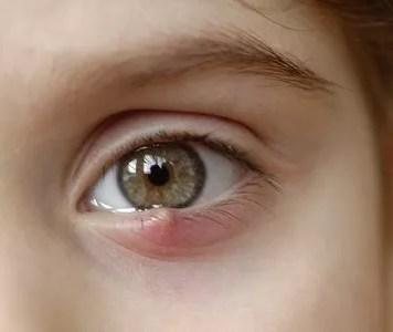 Eyelid Bumps
