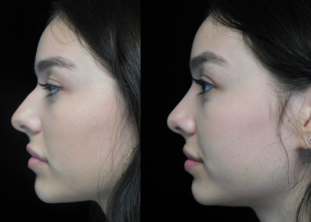 scarless nose rhinooplasty  Dr. Deepak Raj Dugar