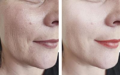 Rajeunissement visage luxopuncture Asselin