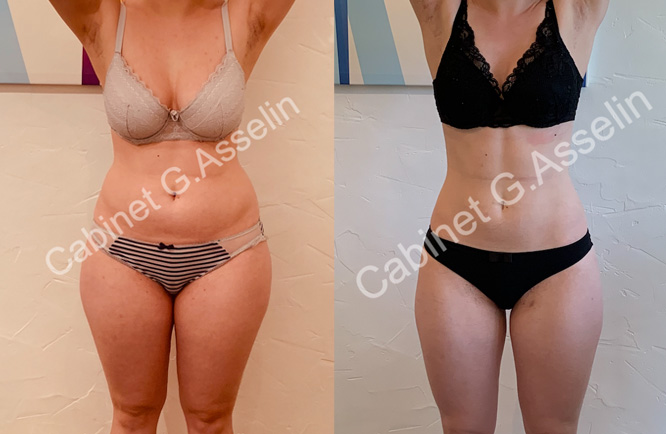 Slimming result luxopuncture Asselin - july 2020