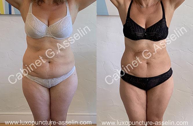 Résultat minceur luxopuncture Asselin - octobre 2020