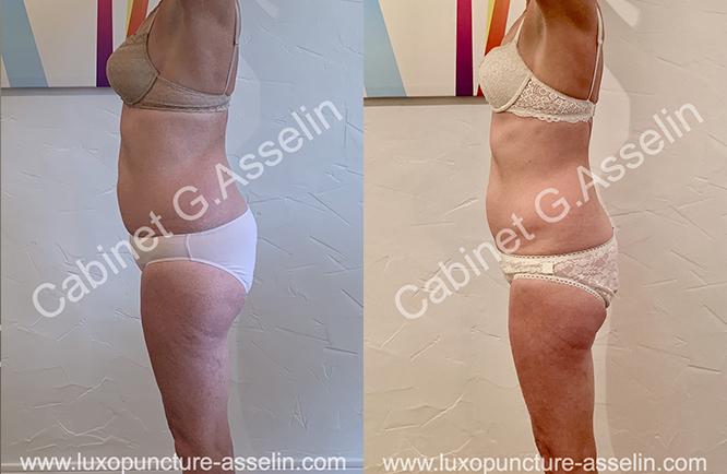 Résultat minceur luxopuncture Asselin - février 2021