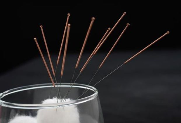 getty_rm_photo_of_acupuncture_needles_and_cotton_swab.jpg
