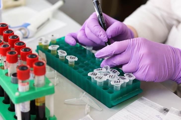 Infectolab - lab