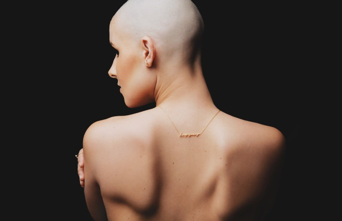 Image result for A Letter To All Of The Doctors That Misdiagnosed lymphoma Cancer