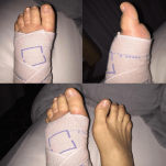 This is a picture of the long stretch bandages that I originally was given. You can see how swollen my toes are!! This happened every time I wore these particular bandages and I thought it was just part of bandaging.