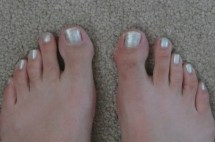 Fish Pedicure Before and After