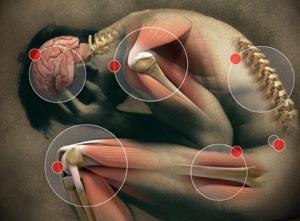 chronic pain - lynsey g