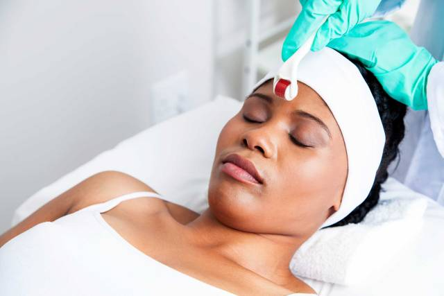 Skin Care Trend Everything You Need To Know About Micro-needling! Lysa Africa Magazine