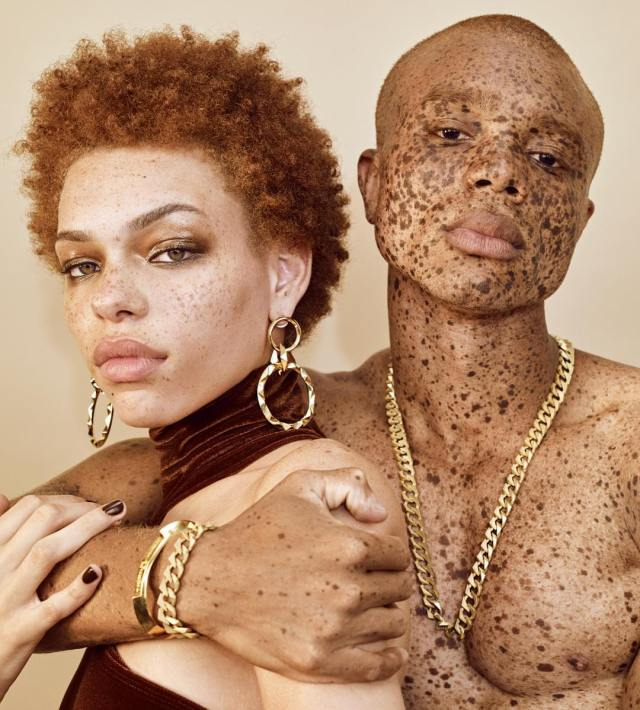 Freckles Are Not Flaws, Love And Embrace Them - Lysa Magazine maan and woman with freckles hugging each other third crown jewellry