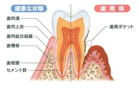 歯の構造を説明|香川県高松市の吉本歯科医院
