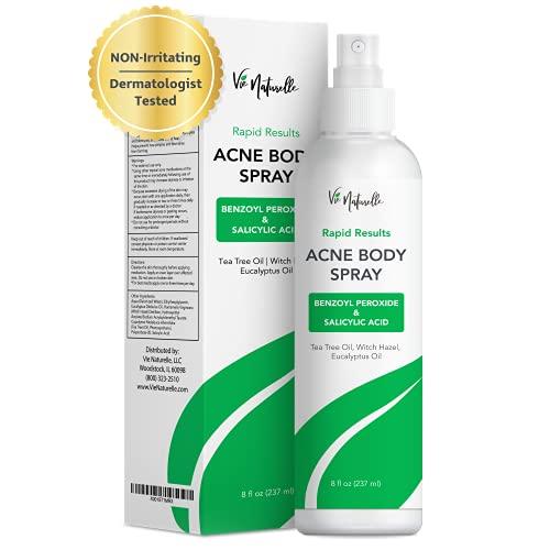 Face & Body Acne Spray - Body, Chest, Butt & Back...
