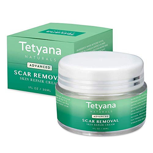 Tetyana naturals Scar Removal Cream Advanced Treatment for Old & New Scars from Cuts Stretch Marks C-Sections & Surgeries With Natural Herbal Extracts Formula hypoallergenic