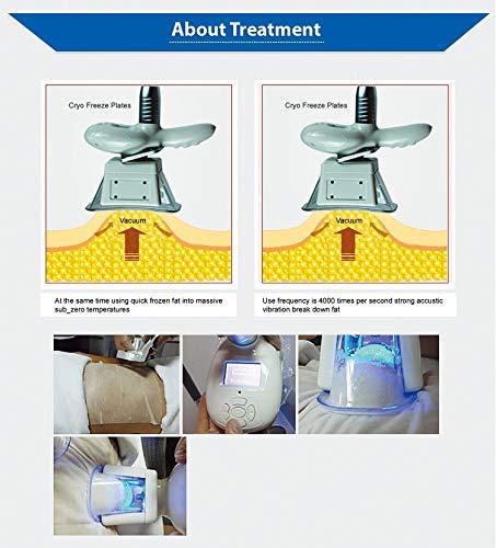 Cryolipolysis Fat Freeze Slimming Machine,Fat Freezer Body Sculpting Device + Cryolipolysis Handle for arm and Leg + Vacuum +Vibration +Blue Light 2