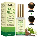 Hair Growth Serum, Hair Loss and Hair Thinning Treatment, Stops Hair Loss, Natural Herbal Essence,Thinning, Balding, Repairs Hair Follicles, Promotes Thicker, Stronger Hair and New Hair Growth(50ml)