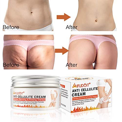 Fat Burning Cream for Belly, Body Anti-Cellulite Cream, Hot Cream Cellulite Treatment, Slimming Cream, Waist Training Cream, Weight Loss Cream for Men and Women, Workout Enhancer for Women-Men120ml 5
