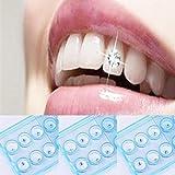 Dents Bijoux Moonuy 10 pcs/Boîte 2mm Dentelle Colorée Dentelle Cristal Bijoux...