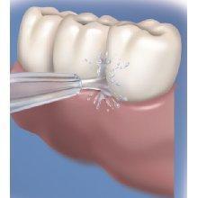 remoção da chapa do irrigador oral