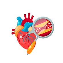 ACV helps clear heart blockages