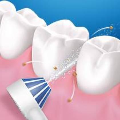 Wie verwendet man Oral-B Aqua Care?