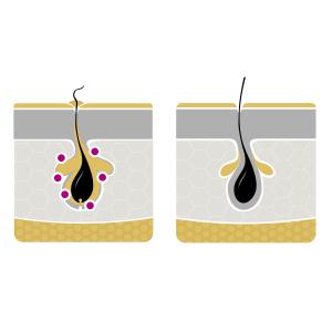 differin, face cleanser, face moisturizer, cream, retinoid, differin gel, dampness, oil control