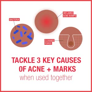Neutrogena Stubborn Acne & Marks treatments treat bacteria, inflamed acne bumps and clogged pores